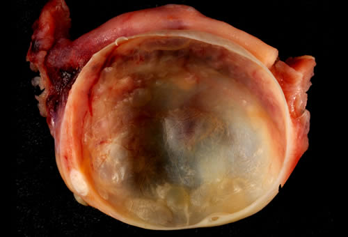 Ovarian_cysts_2